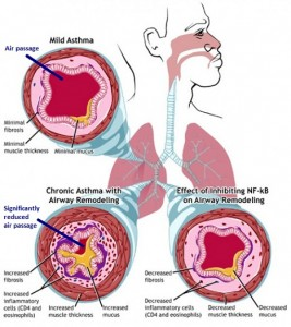 asthma-treatments