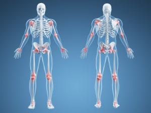 osteoporosis-clinic-gold-coast