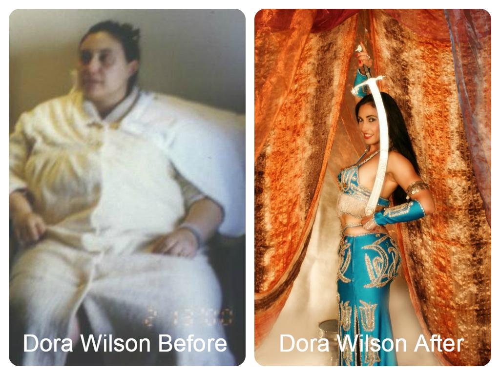 dora-wilson-before-after